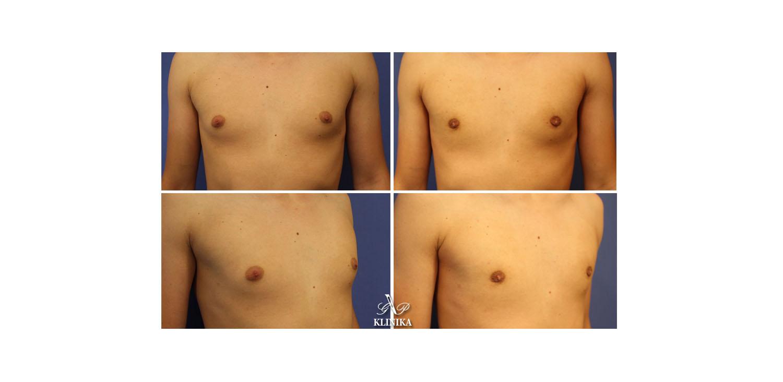 Коррекции гинекомастии у мужчин