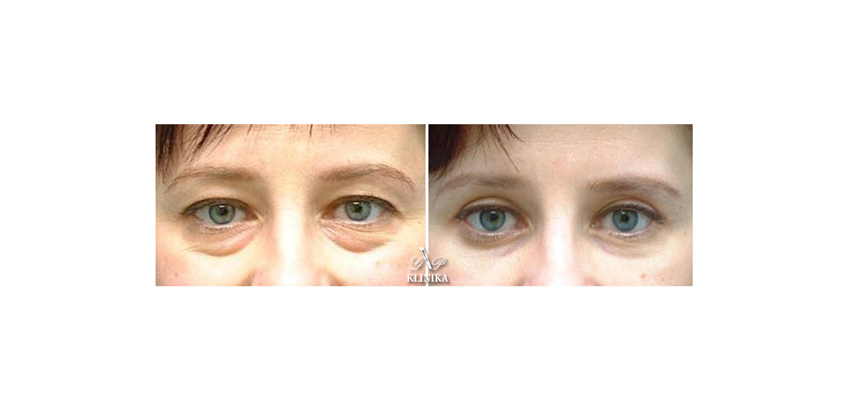 Akių vokų korekcija