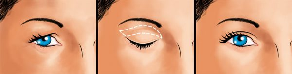 Коррекция глазных век