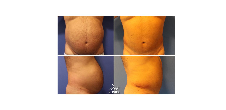 Body contouring surgeries