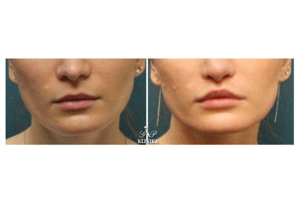 Lip shape corrections