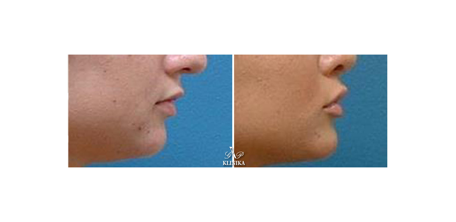 Lip shape corrections
