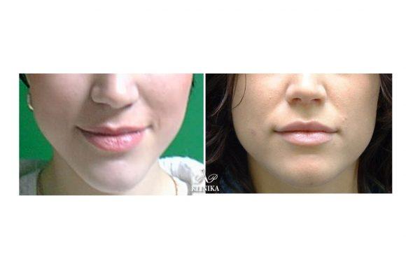 Lūpų formos korekcijos