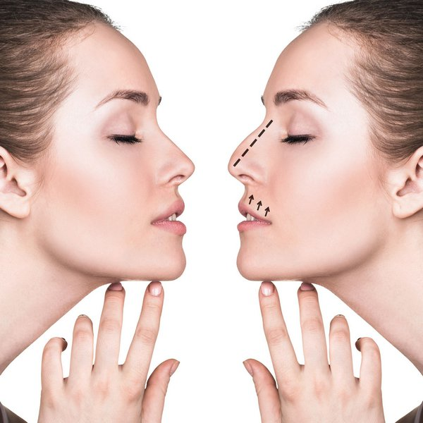 How To Locate The Best Plastic Surgery Dayton OH Professional