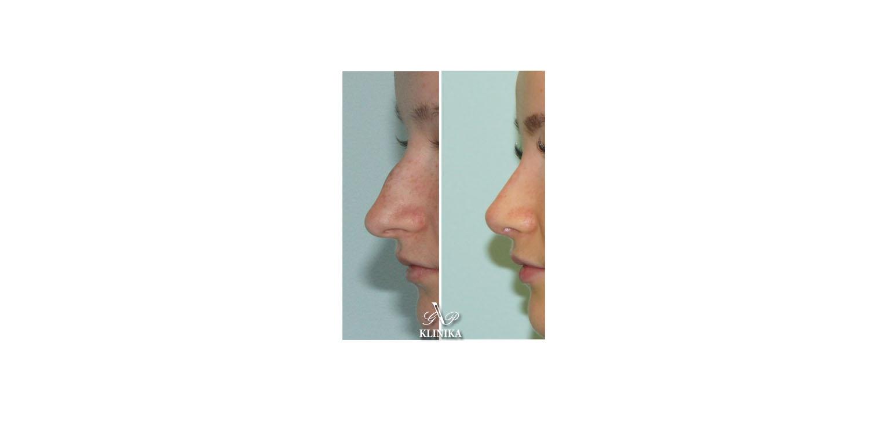 Nose correction