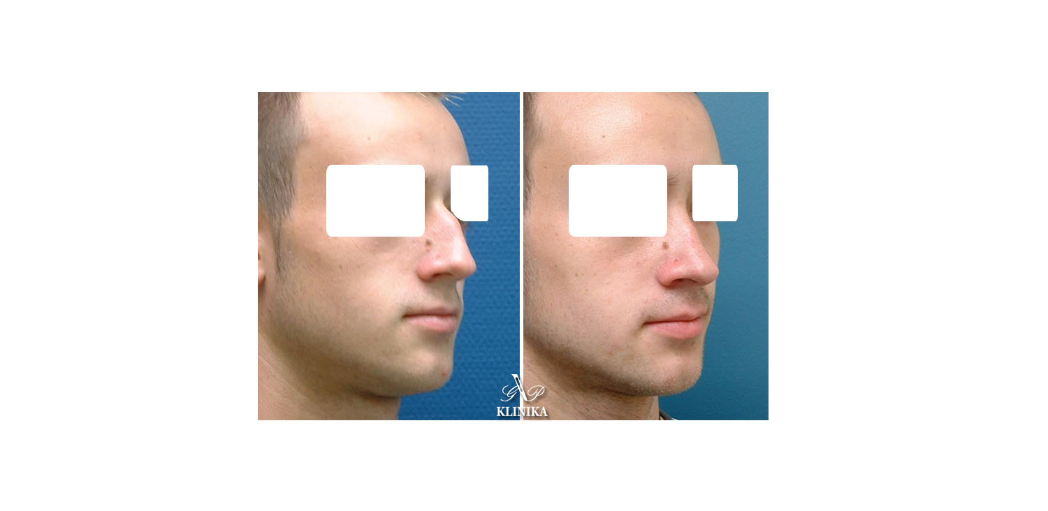 Nose correction