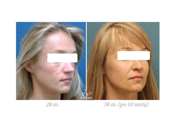 Riebalų persodinimas į veidą