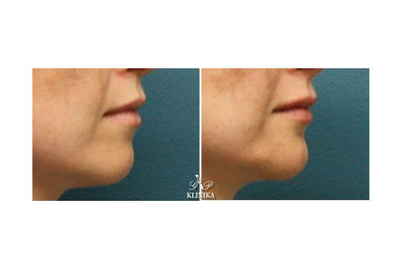 Chin correction