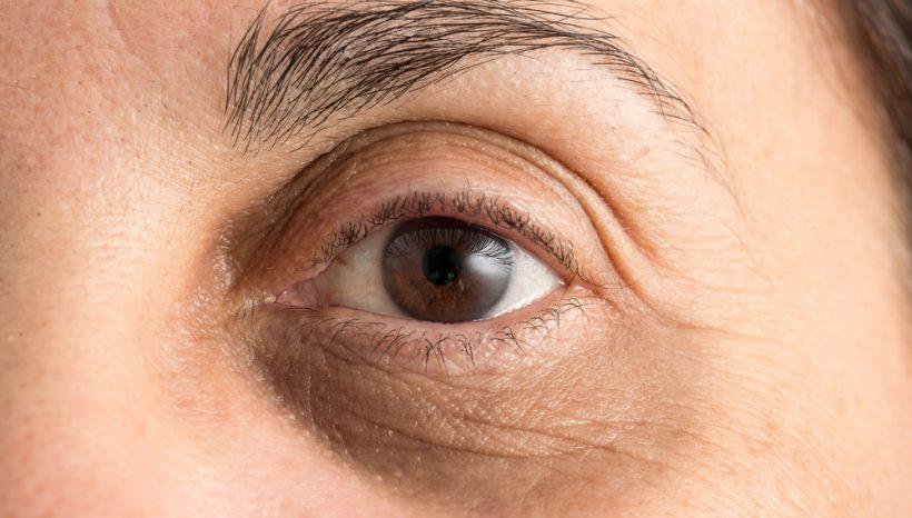 Corrections of dark circles under the eyes