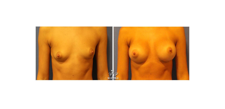 Коррекции асимметрии груди