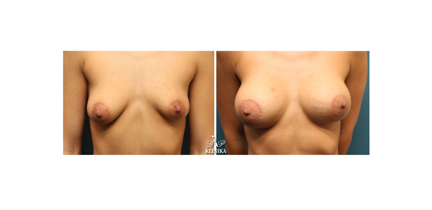 Breast asymmetry corrections