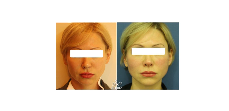 Facial surgical threads