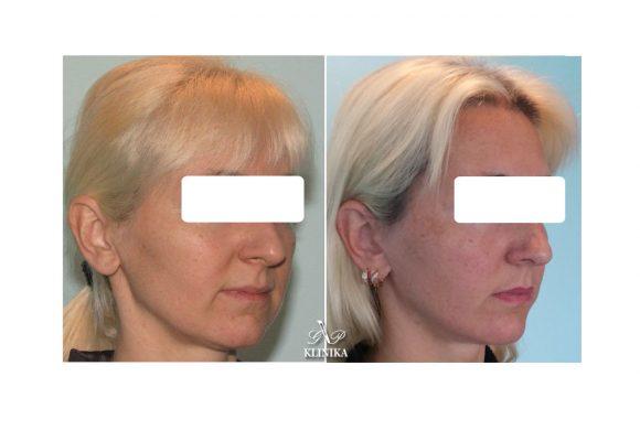 Mini invazinės veido formos korekcijos