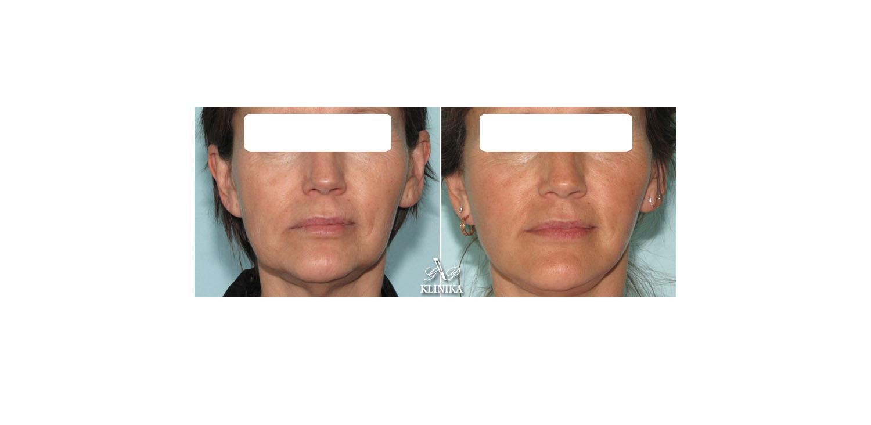 Mini-invasive facial shape corrections