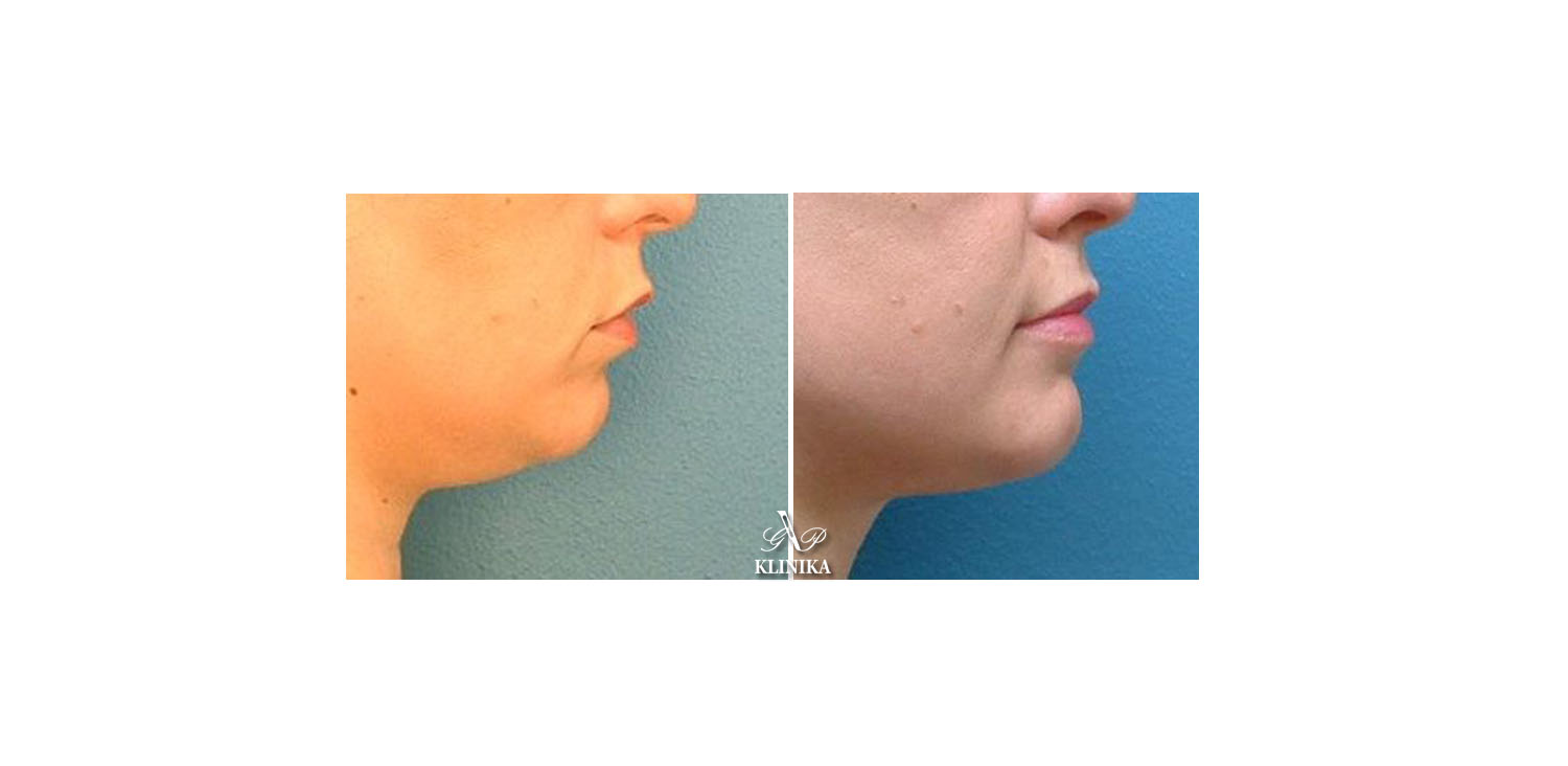 Corrections of the lower part of the chin