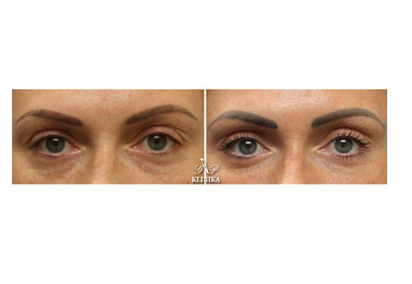 Corrections of dark circles under the eyes