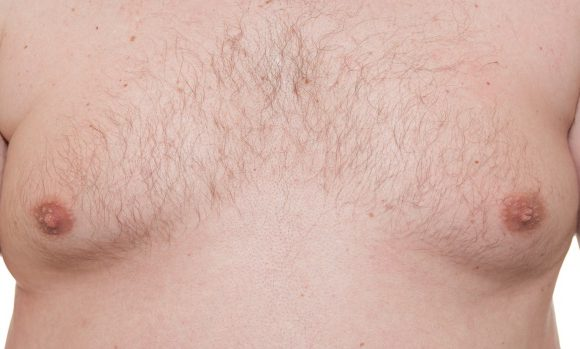 Gynecomastia corrections for men