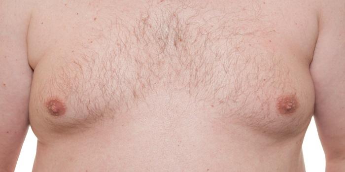 Gynecomastia corrections for men