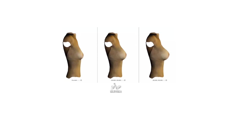 3D моделирование лица и тела