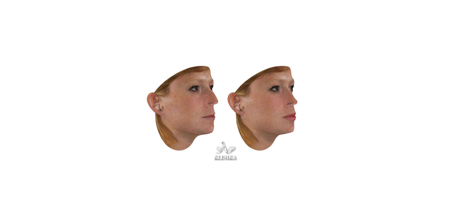 3D face and body simulation