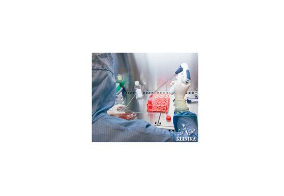 SVF kamieninės ląstelės