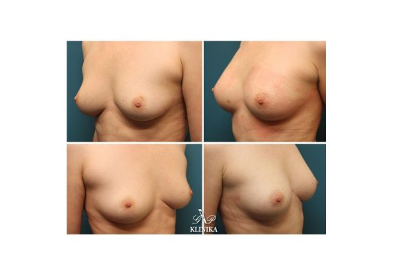 Breast augmentation with fat