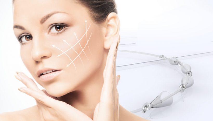 Ką reikia žinoti apie veido pakėlimo siūlus?