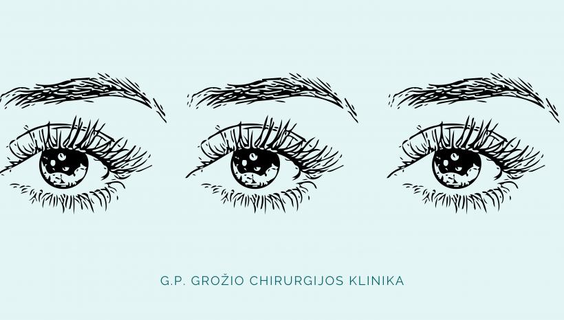 Akių vokų korekcija – viena paprasčiausių, tačiau reikšminga plastikos operacija